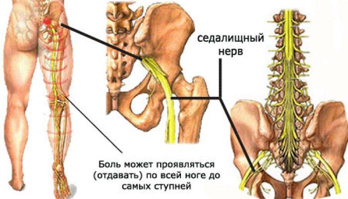 Йогатерапия при защемлении седалищного нерва